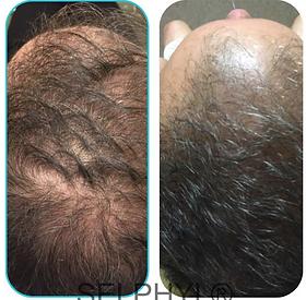PRF-hair-restoration.png