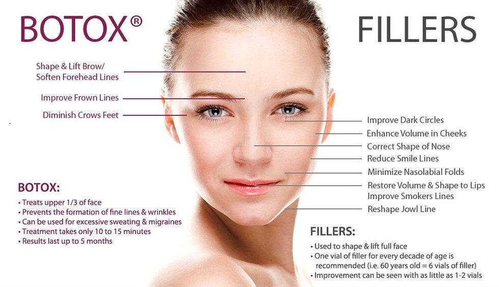 botox:filler.jpg