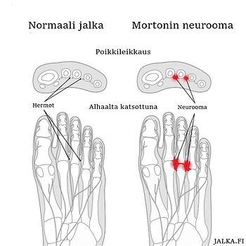 Neurooma.jpg