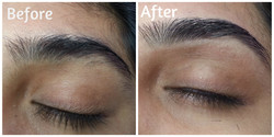 Eyebrow Before After