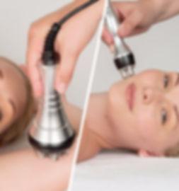 radiofrecuencia-facial-corporal-estetica
