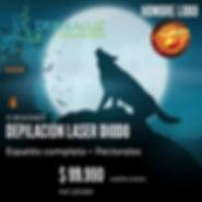 201911-depilacion-laser-hombre-lobo-derm
