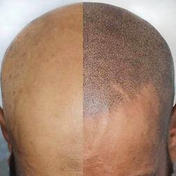 scalp tattoo, smp, cosmetic tattoo