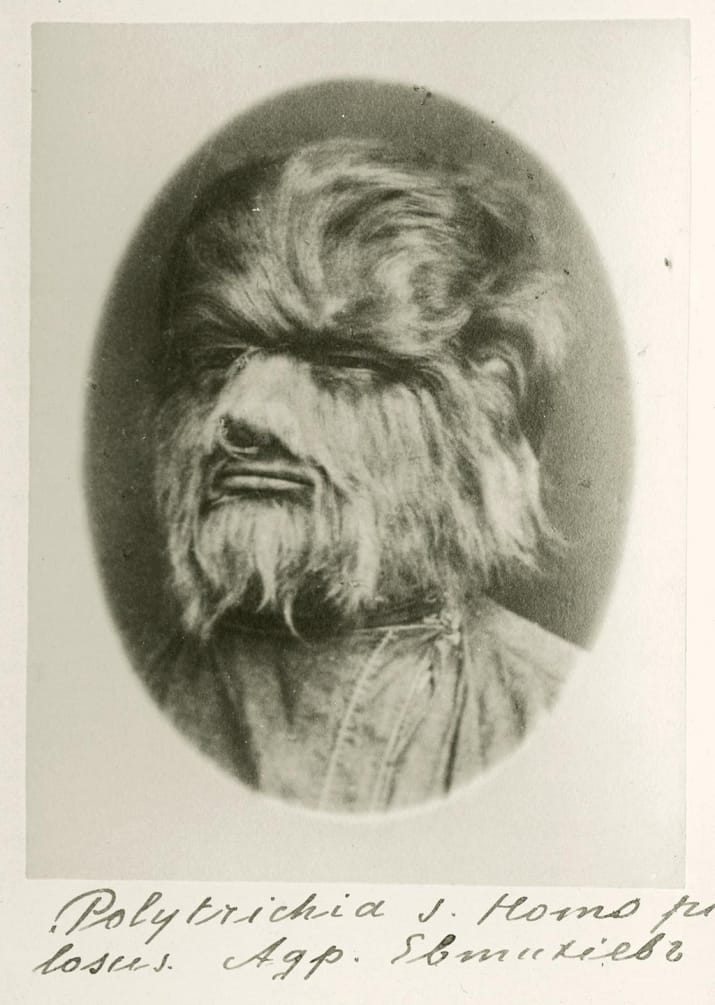 black and white photo of tintype head shot of a wolfman