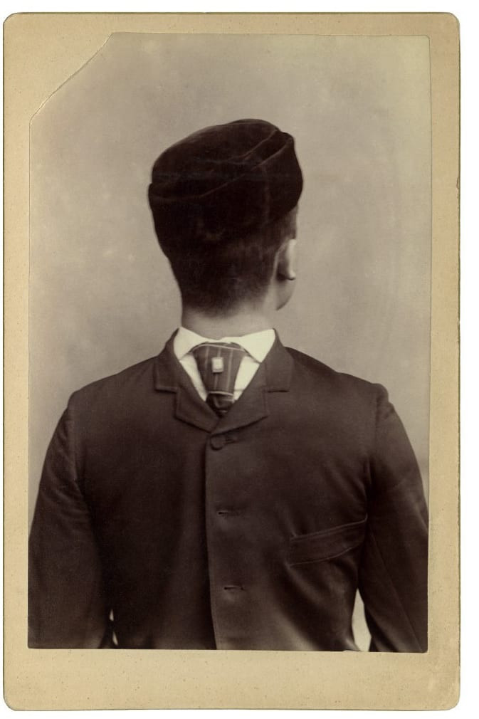 old black and white photo of man with backward facing head