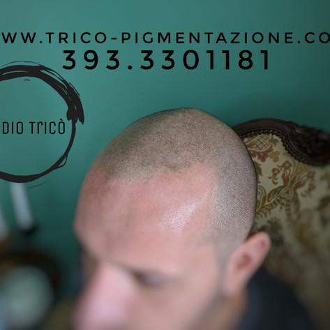 TRICOPIGMENTAZIONE STUDIO TRICO'