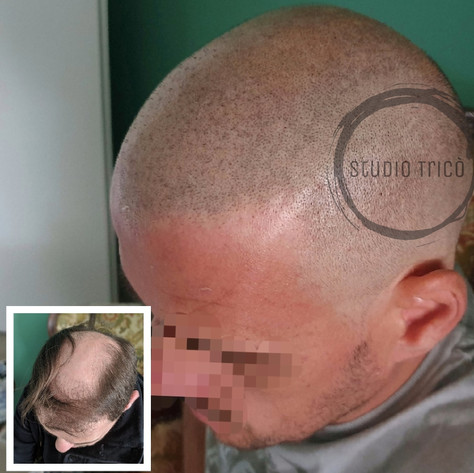 Amedeo Basso tricopigmentazione