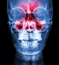 Sinusitis.%2520film%2520x-ray%2520skull%2520AP%2520(%2520anterior%2520-%2520posterior%2520)%2520show