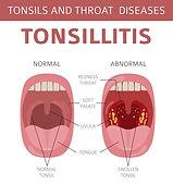 Tonsilitis.jpg