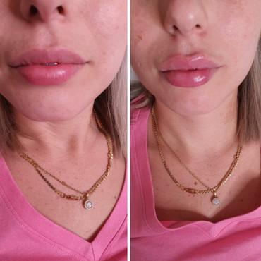 מילוי שפתיים - רבנס