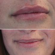 עיבוי שפתיים בחומצה היאלורונית