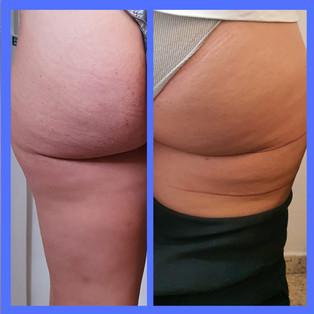 ליפוליזיס - המסת שומן