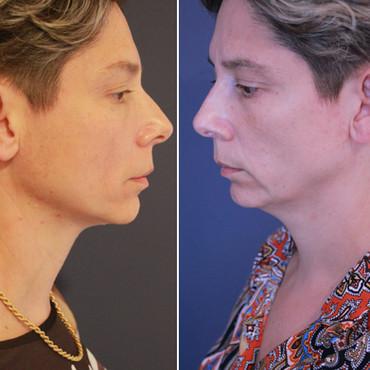HIFU - טיפול למיצוק צוואר סנטר קו לסת ול