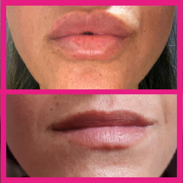 מילוי שפתיים לפני ואחרי