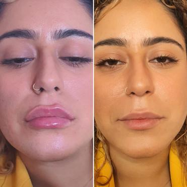 מילוי שפתיים- לפני ואחרי