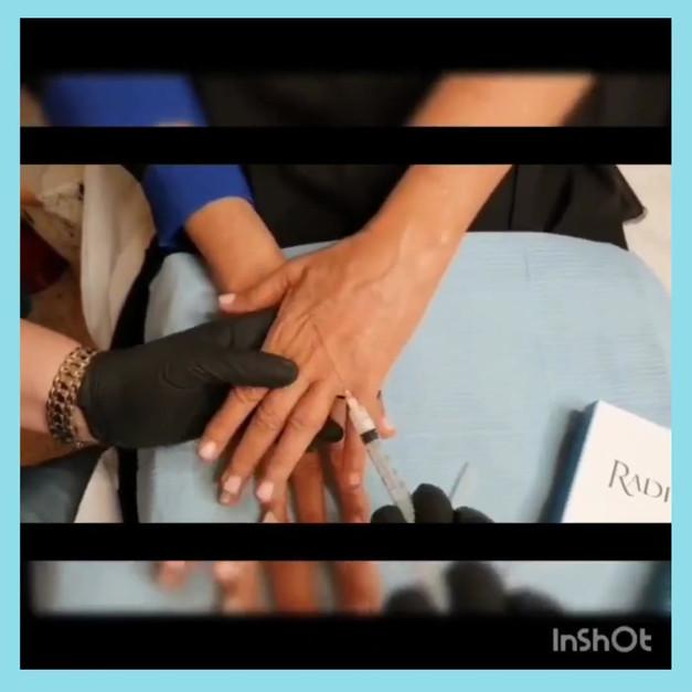 הזרקת רדיאס לכפות ידיים
