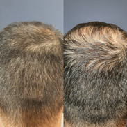 PRP שיער