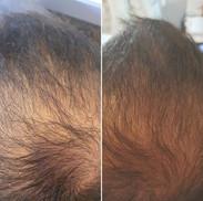 PRF לעידוד צמיחת שיער
