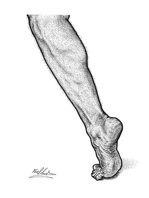 LEGS (GIL) - NEW