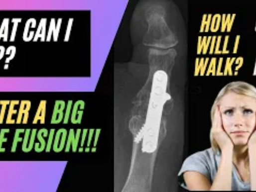 What Can I Do After A Big Toe Fusion?