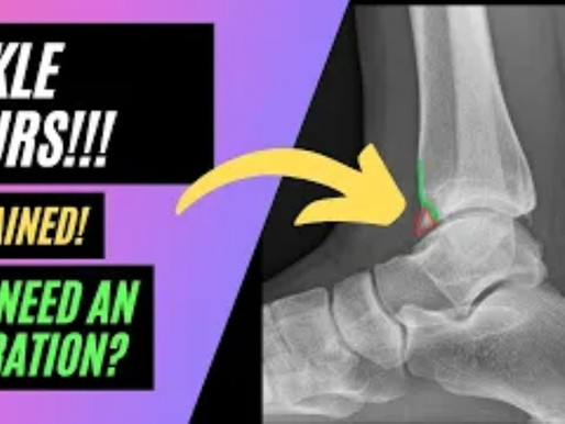 Ankle Spurs! A Cause of Pain at the Front of the Ankle!