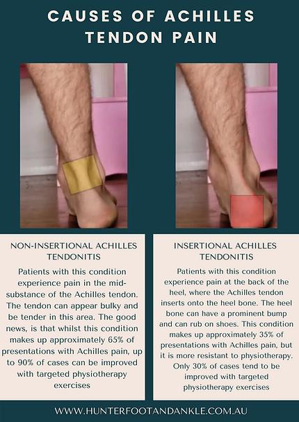 Causes of Achilles Tendon Pain