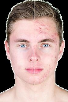 acne transparente.png