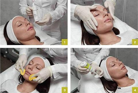 Image result for Dermaceutic Milk Peel<奶滑果酸換膚>療程
