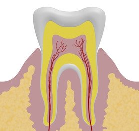 Root Canal Treatment Spinel Dental Hamil