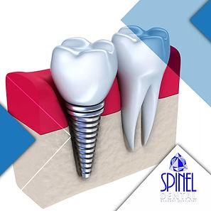Dental-Implants-Hamilton-Teeth Implant S