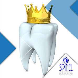 Dental-Crown-Tooth-Cap-Hamilton-Spinel-D