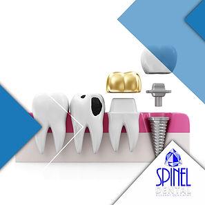 Restoration-Dentistry-Hamilton-Dentist-S