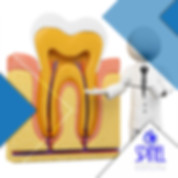 Root-Canal-Treatment-Endodontics-Hamilto