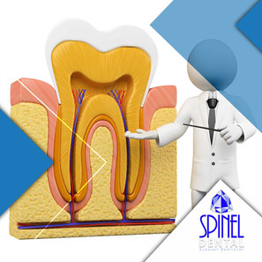 Root-Canal-Treatment-Endodontics-Hamilto