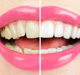 Teeth Whitening Zoom Home Bleach
