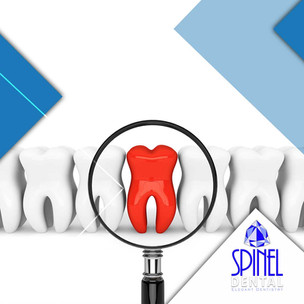 wisdom-teeth-removal-extraction-Hamilton
