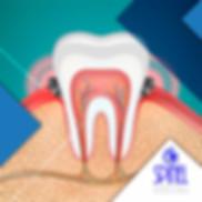 Periodontal-Gum-Disease-Hamilton-Spinel-