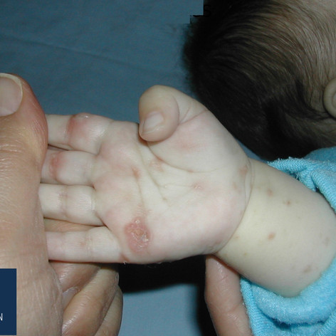 Scabies in an infant