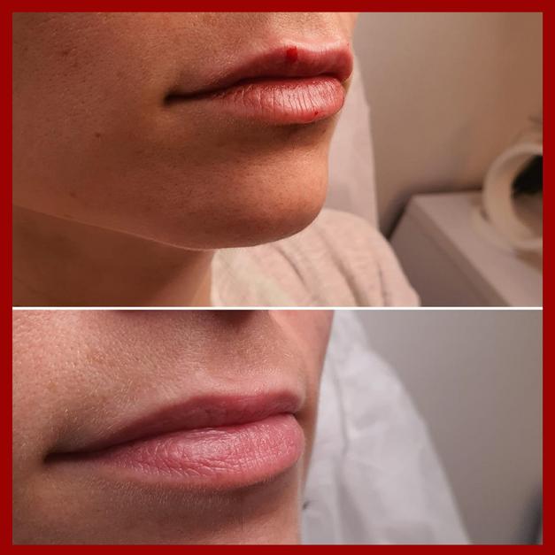 תיקון א סימטריה בשפתיים
