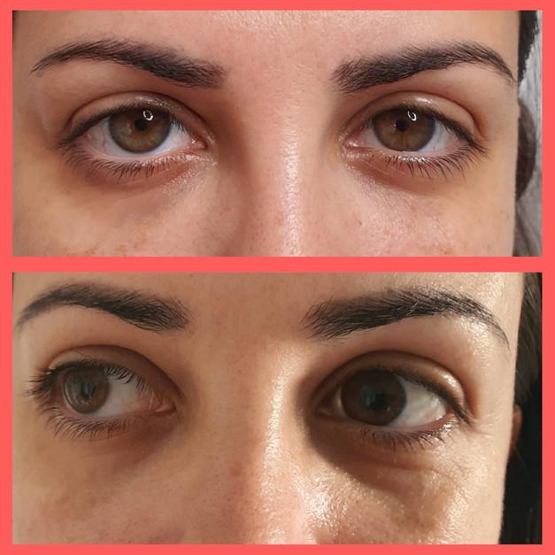 טיפול בשקעי עיניים