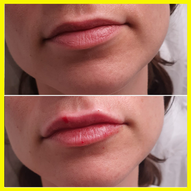 עיצוב וטיפול בא- סימטריה בשפתיים