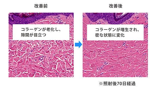 satoclinic_HP_topic_イントラ_画像2.jpg