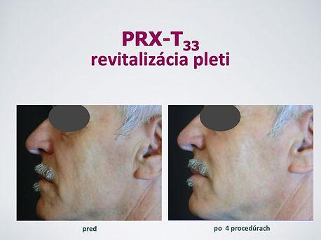 PRXT-3_predpo1.jpg