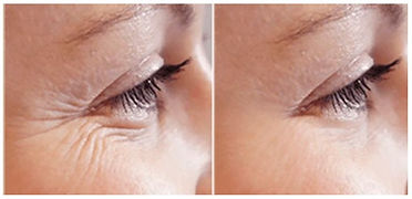 before-and-after-plasma-eye-tightening-7
