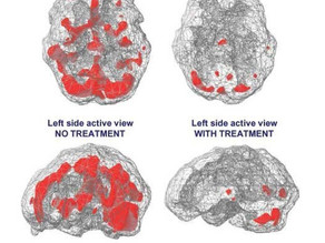 Brain Scan (Before and After EMDR)