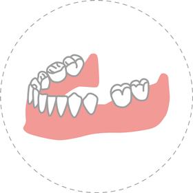 中間の歯を1本失った歯茎のイラスト
