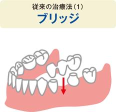 中間の歯を1本失った場合の従来の治療法(1)ブリッジのイラスト