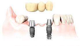 人工歯装着のイメージイラスト