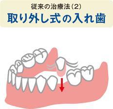 中間の歯を1本失った場合の従来の治療法(2)取り外し式の入れ歯のイラスト