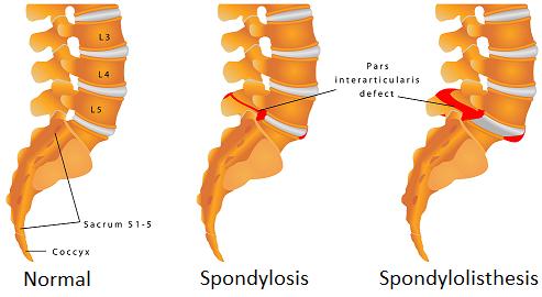 Spondylosis and Spondylolisthesis | Dr. Benjamin Bjerke